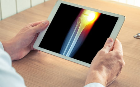 Technology Landscape – Digital Solutions For Knee Surgery